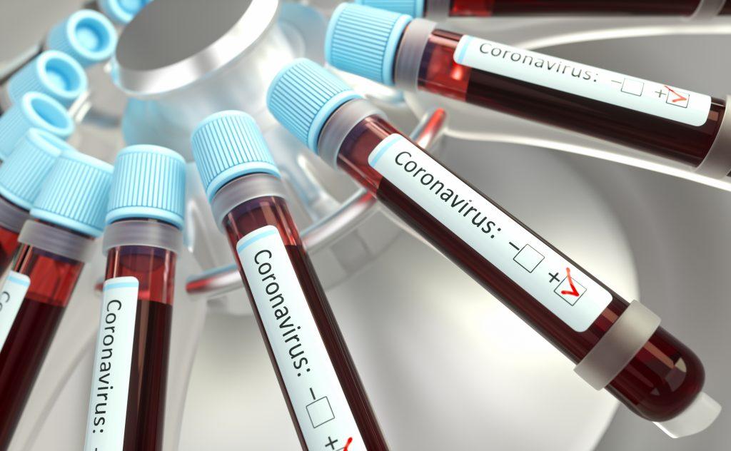 Ampullen mit Blutproben